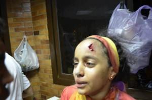 اصابة طفلة مؤيدة للشرعية