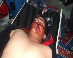 شهيد مسيرة قتلته الشرطة بلباس مدني