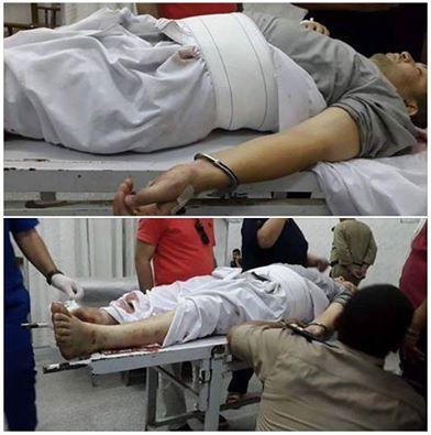د.محمد محمود الأودن بالكلابشات داخل مستشفى شبين الكوم