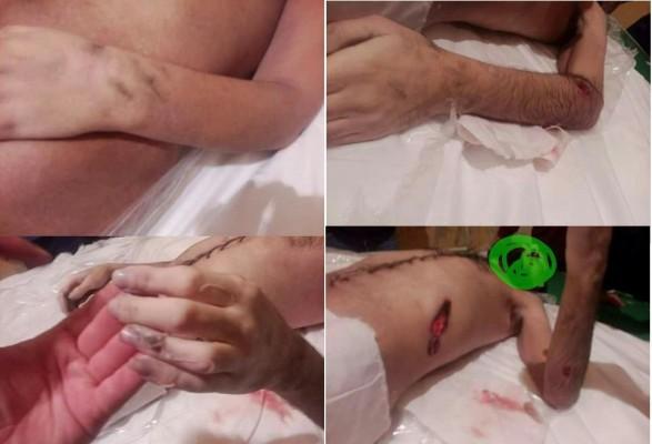 آثار تعذيب أبناء سيناء قبل تصفيتهم