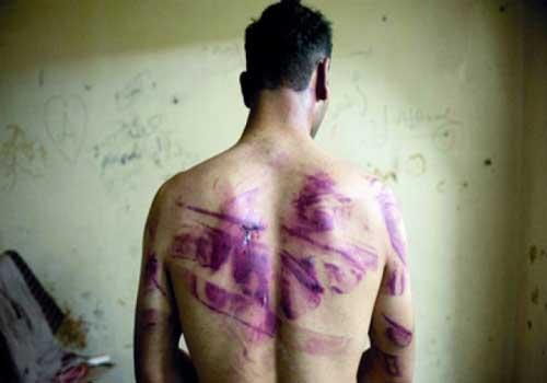 طرق تحطيم المعتقلين السياسيين في مصر